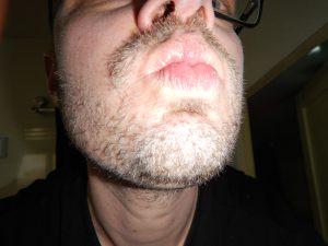 Liten pojke med 2,5-veckas skägg.